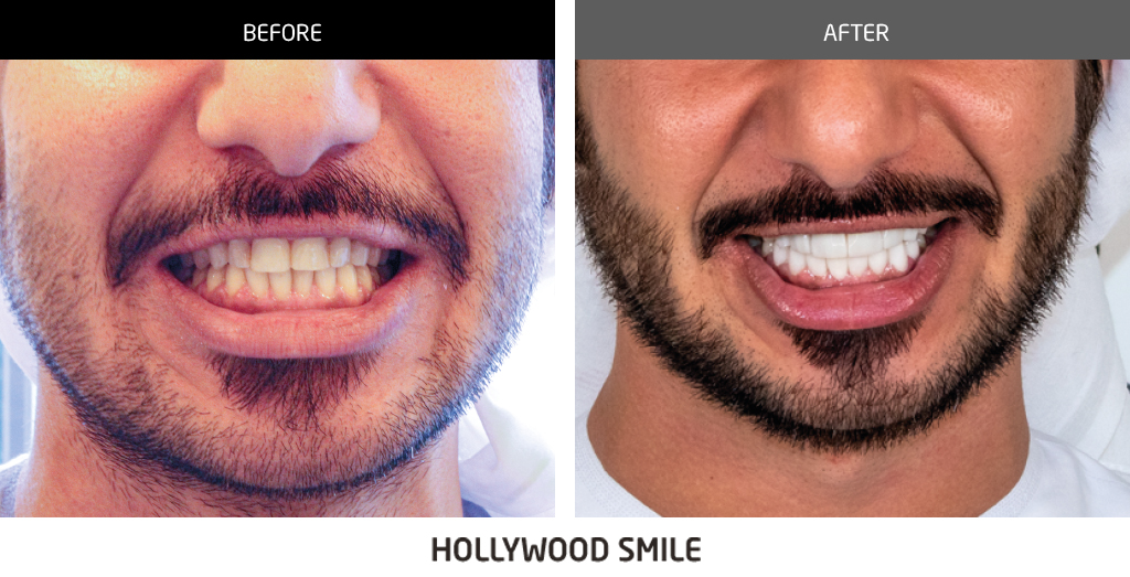 before and after dental 01 copy