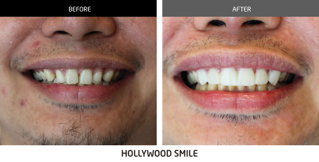 before and after dental 03