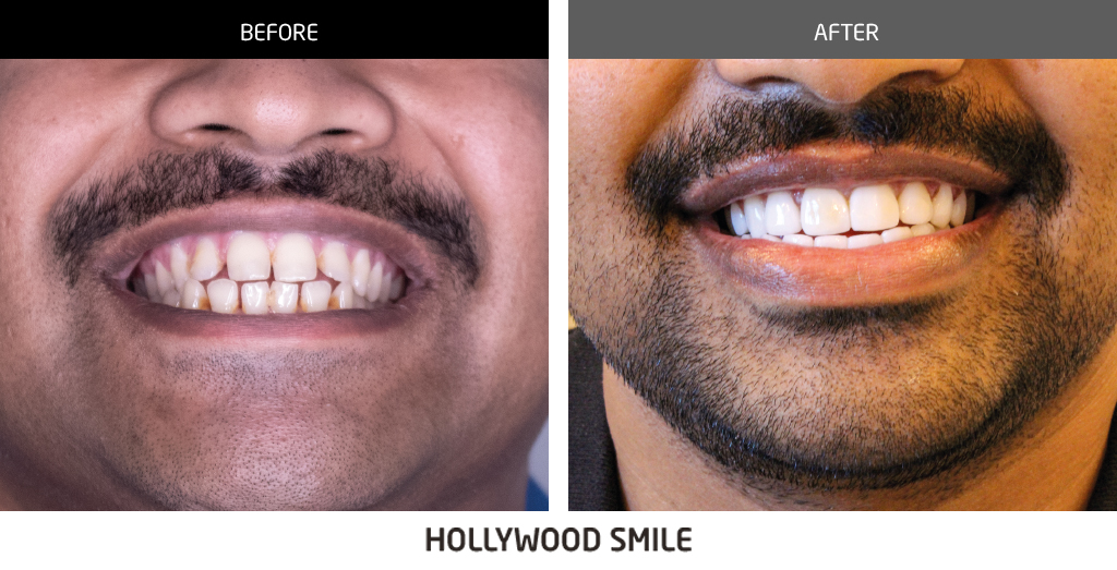before and after dental 04