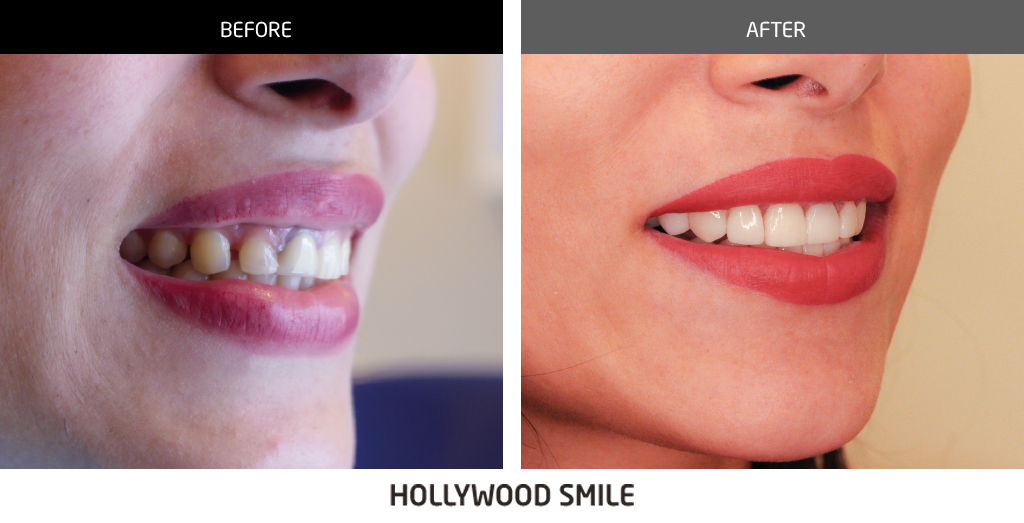 before and after dental 045